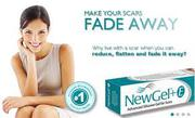 Best Scar Reduction Products