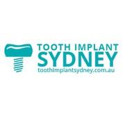 Full dental implants at just $2850