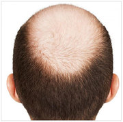 Male Hair Transplant Prices - Male Hair Transplant Cost Australia