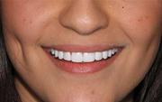 Dental Implants Sydney - Orthodontist in Sydney CBD