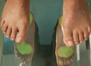 Why Is It Important to visit Orthotic Solutions Podiatry?