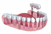 Cosmetic Dental Implants Dentistry in Sydney