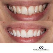 Best cosmetic Dentistry Bella Vista – CompleteSmiles